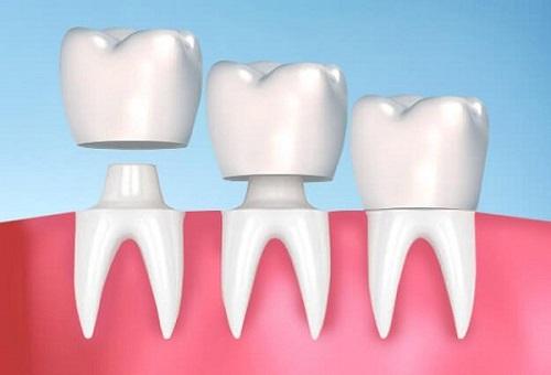Bọc răng sứ có tháo ra được không? Tìm hiểu ngay-1