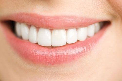 Bọc răng sứ giữ được bao lâu? Những điều cần tránh khi bọc răng sứ-1