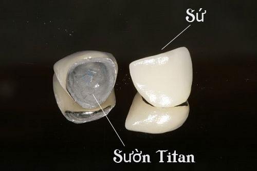 Bọc răng sứ kim loại có bền không? Duy trì độ bền bao lâu-3
