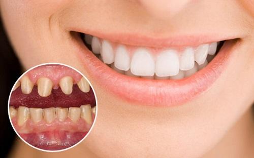 Hỏi đáp - Làm răng sứ có niềng răng được không?-1