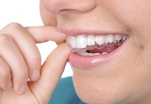 Tư vấn - Niềng răng trong suốt có phải nhổ răng không?-1