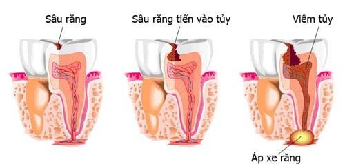 Trồng răng sứ có phải lấy tủy không? Vì sao?-1