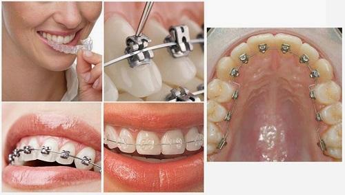 Niềng răng bao lâu thì nên có bầu? Lưu ý khi niềng răng-2