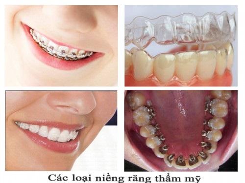 Niềng răng chữa cười hở lợi bạn có tin không? Tìm hiểu ngay-4