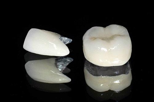 Răng sứ có bị xuống màu không? Tìm hiểu về các vật liệu làm răng sứ-3