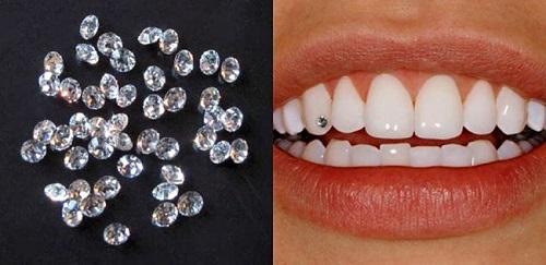 Răng sứ có đính đá được không? Chuyên mục thẩm mỹ nha khoa-2