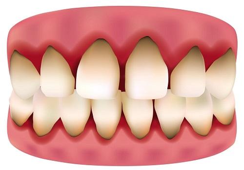 Trồng răng sứ bị đen chân răng - Do cách chăm sóc hay vật liệu trồng răng-1