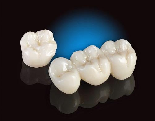 Trồng răng sứ dùng được bao lâu? Những lưu ý duy trì độ bền răng sứ-3