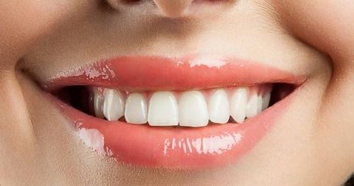 Niềng răng trả góp Cần Thơ - Hình thức đăng ký 1