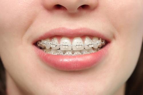 Răng hô nhẹ - Giải pháp khắc phục hiệu quả 3