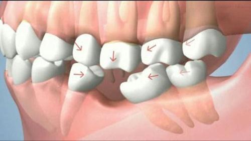 Trồng răng hàm implant có đau không? Nên chuẩn bị gì khi trồng răng implant? 1