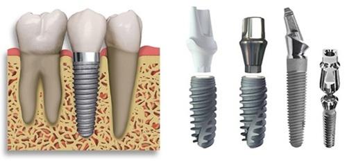 Trồng răng hàm implant có đau không? Nên chuẩn bị gì khi trồng răng implant? 2
