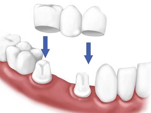 Trồng răng giả có lâu không? Kỹ thuật thực hiện 1