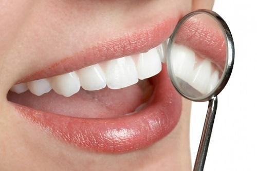 Giải đáp thắc mắc - Trồng răng giả có niềng được không? 2