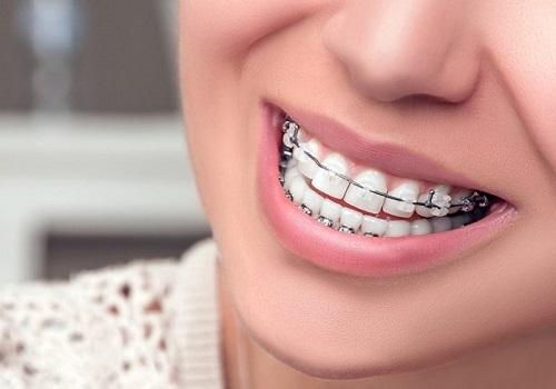 Kinh nghiệm niềng răng thưa hữu ích nhất cho bạn 2