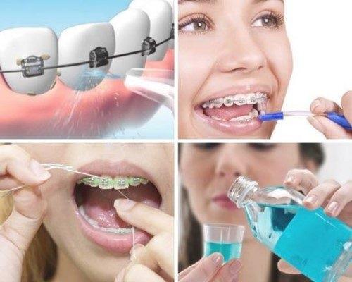 Kinh nghiệm niềng răng thưa hữu ích nhất cho bạn 4