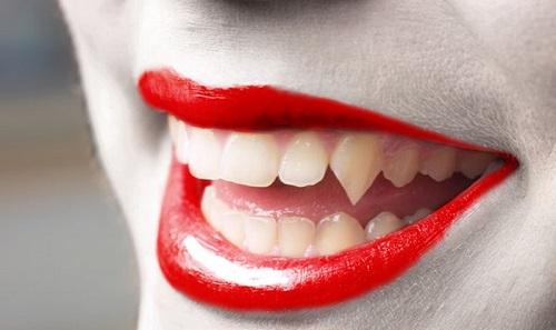Trồng răng khểnh có đau không? Có nên trồng răng khểnh 3