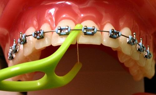 Niềng răng mắc cài sứ dây trong - Phương pháp chỉnh nha 3