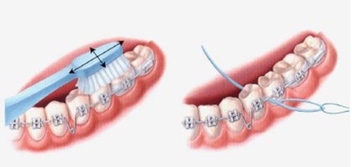 Niềng răng nên ăn gì giúp vệ sinh răng miệng tốt hơn? 2