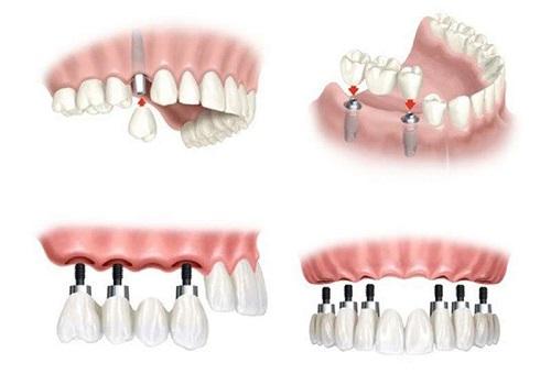 Kinh nghiệm làm răng implant cho người bị mất răng 1