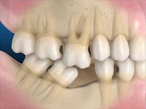 Mất răng lâu năm có trồng được không? Giải pháp khắc phục 1