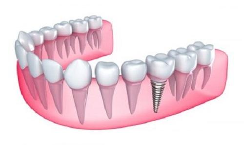 Trồng răng sứ có bền không? Lời khuyên từ nha khoa 1