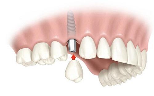 Trồng răng sứ có bền không? Lời khuyên từ nha khoa 2