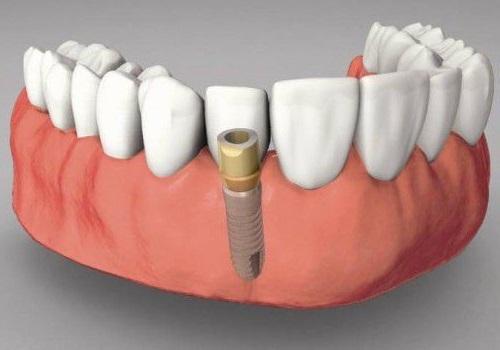Trồng răng sứ có bền không? Lời khuyên từ nha khoa 3
