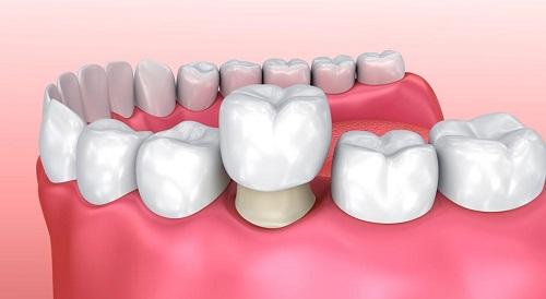 Răng sứ có bị sâu không? Kiến thức nha khoa bạn nên biết 1